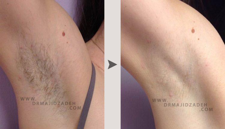 لیزر موهای زیر بغل زنان