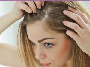 ریزش مو+درمان