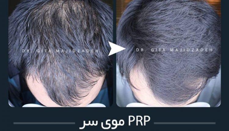 Hair-PRP