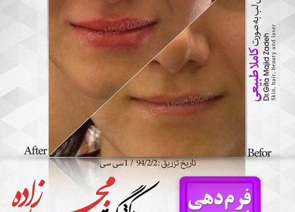 Lip-10