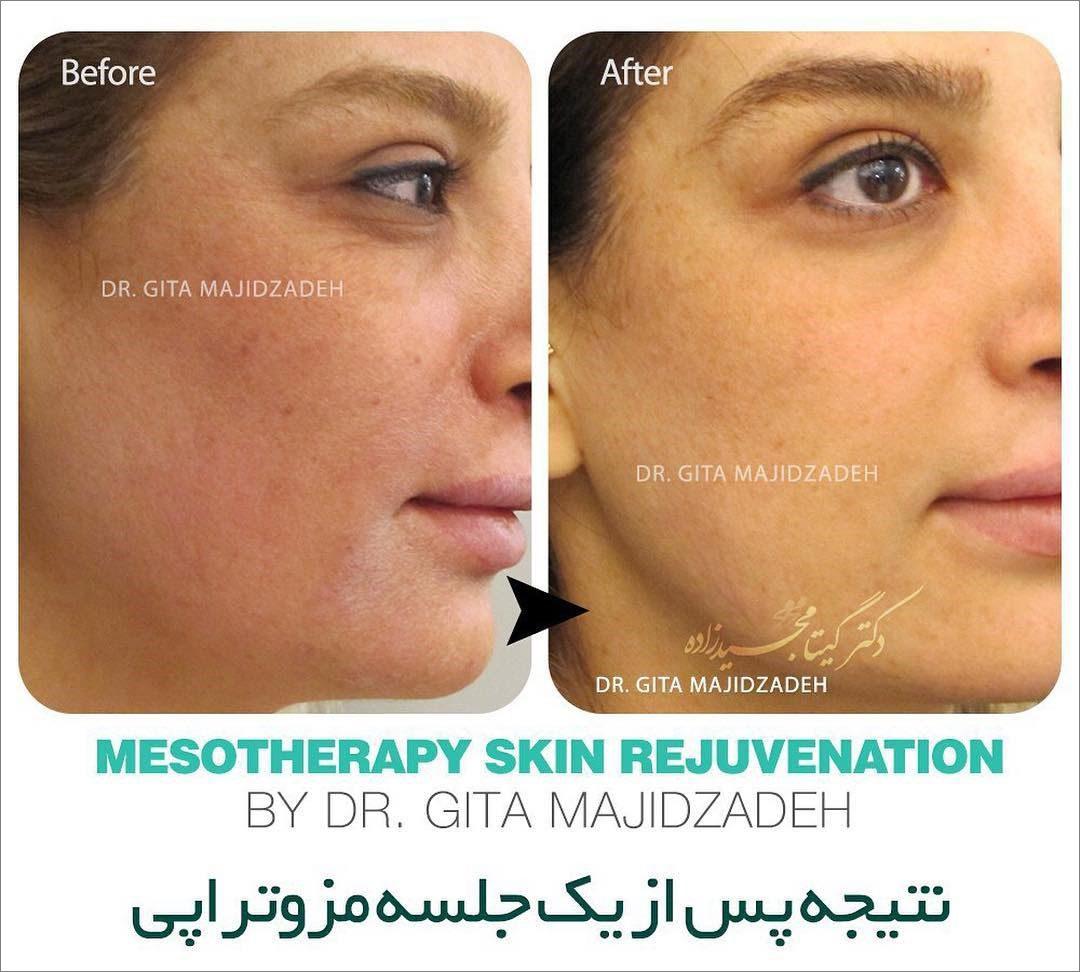 نمونه قبل و بعد مزوتراپی پوست