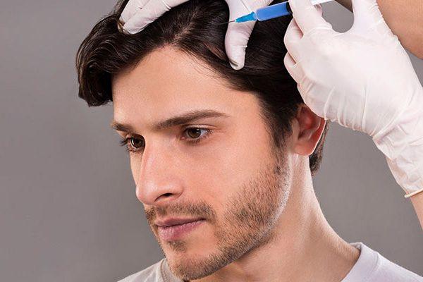 تزریق امپول در سر برای رشد مو