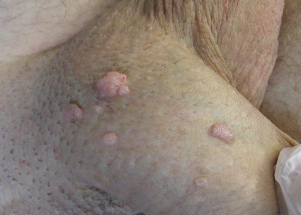 condylom-hpv-lasertherapie