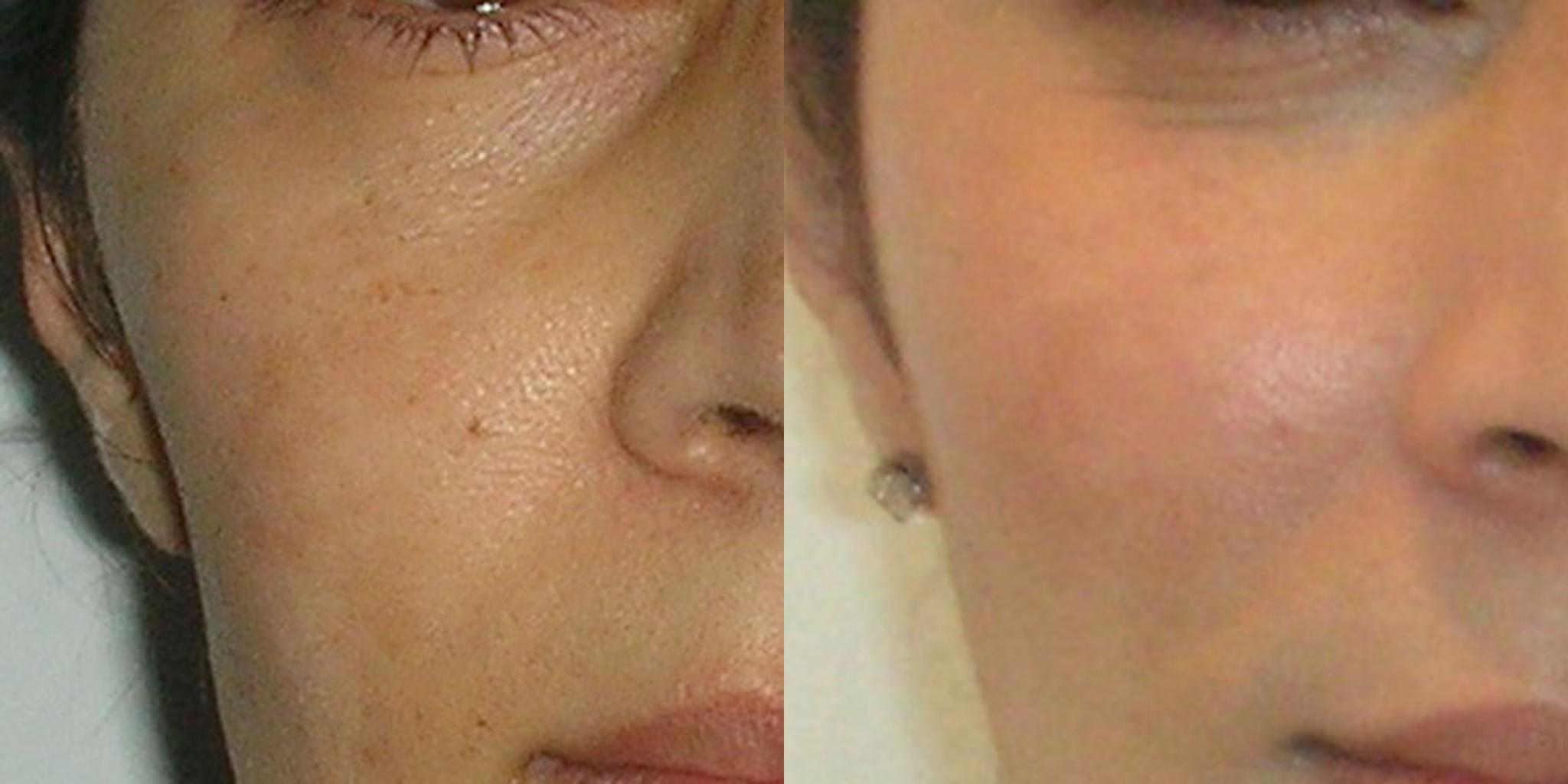 fat-transfer-lipofilling-face-manchester