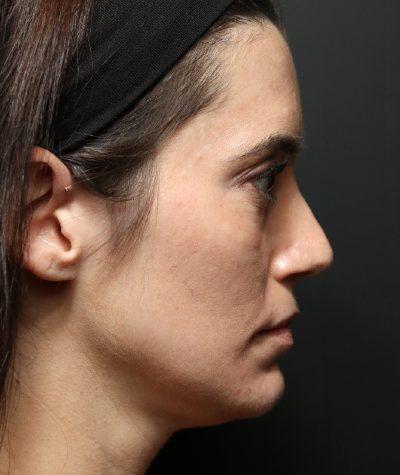 تزریق فیلر زیر چشم برای برطرف کردن گودی زیر چشم