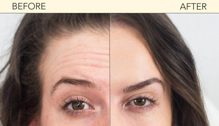 قبل و بعد از بوتاکس پیشانی