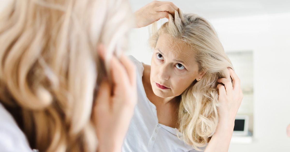درمان ریزش موی یائسگی
