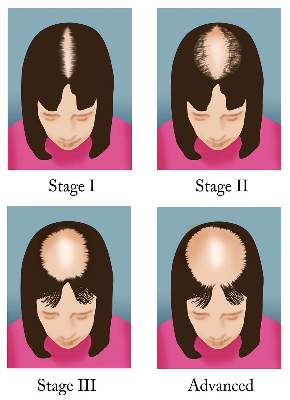 مراحل ریزش مو الگوی زنانه