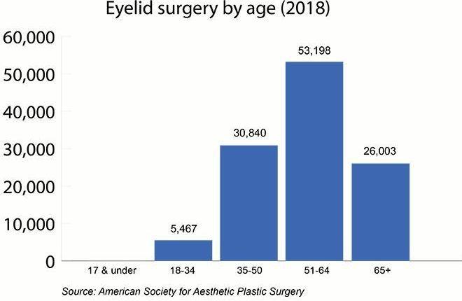 جراحی پلک براساس سن(۲۰۱۸)