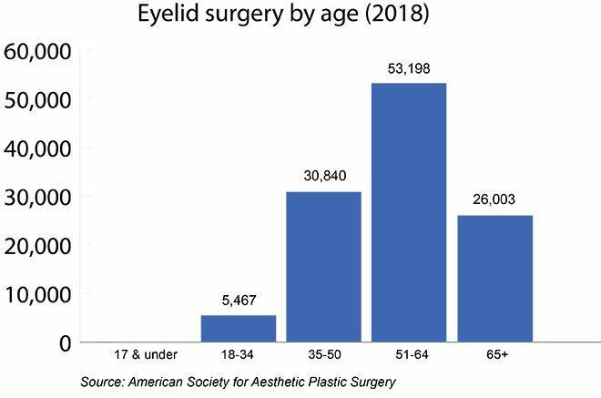 جراحی پلک براساس سن(2018)