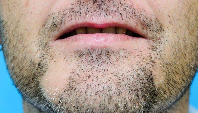 ریزش موی صورت