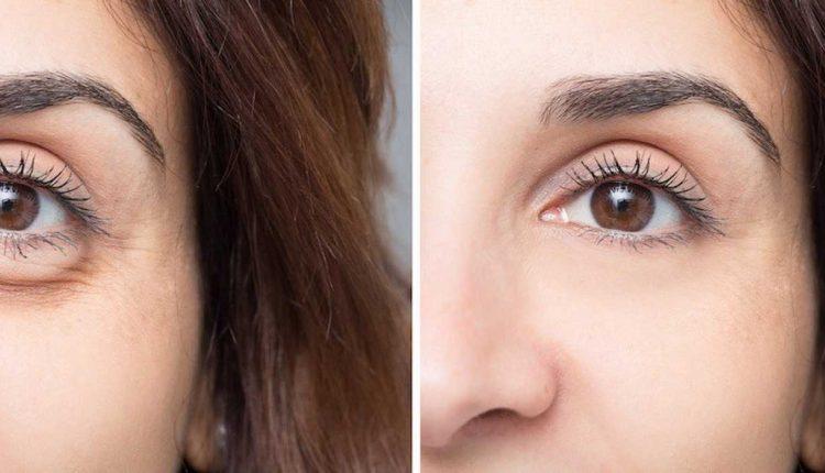 زیبایی چشم