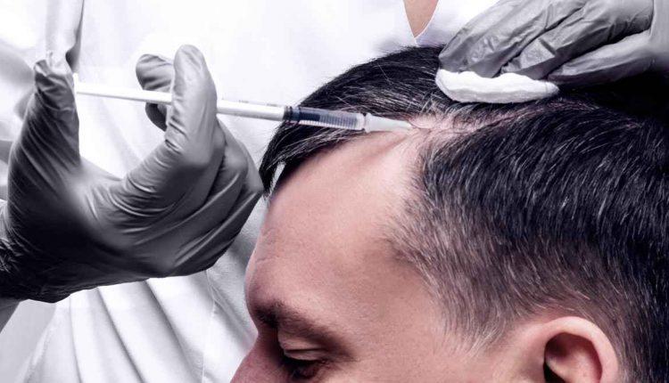 درمان ریزش مو با فیلر مو
