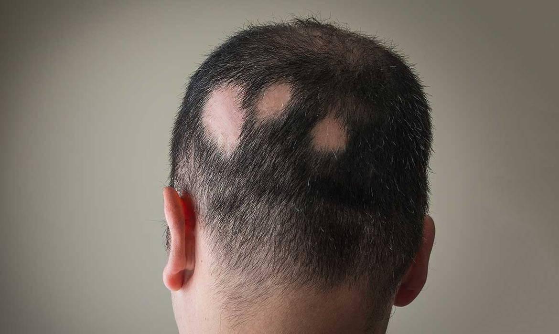 درمان ریزش مو سکه ای