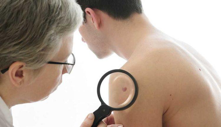 آیا ضایعات پوستی من از علائم کرونا است؟