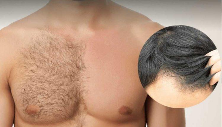کاشت مو با روش bht