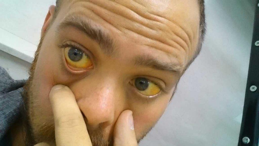 علت زردی پوست