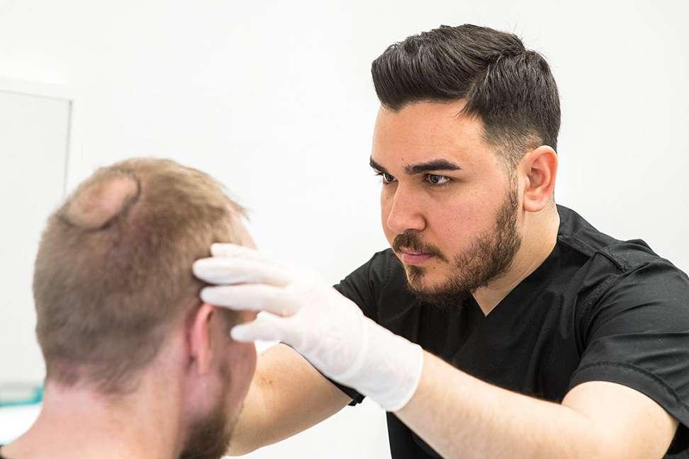 تکنیک های لازم برای کاشت مو