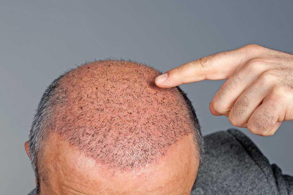 مراقبت های بعد از عمل کاشت مو