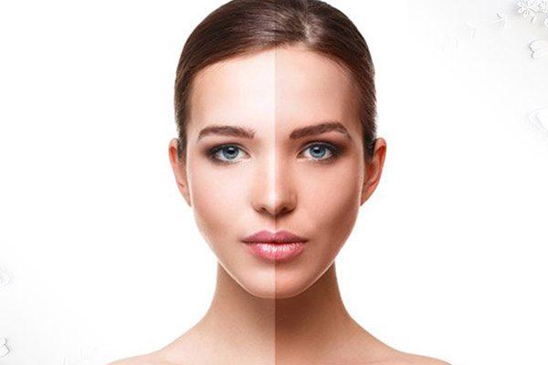 علت تیره شدن پوست صورت