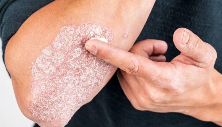 ۱۰ بیماری نادر پوستی