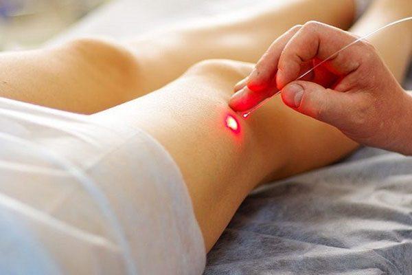 درمان لیزری پاهای توت فرنگی