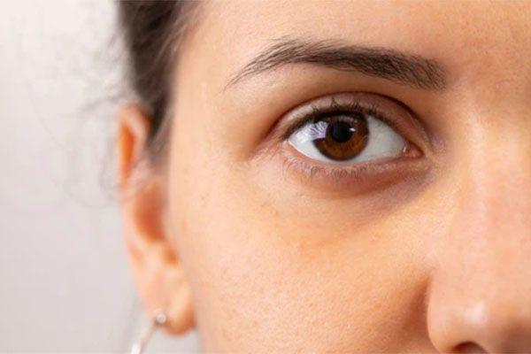 علت گودی زیر چشم